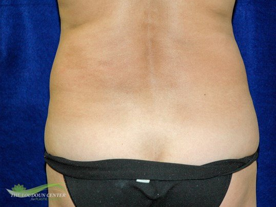Liposuction Flanks Before