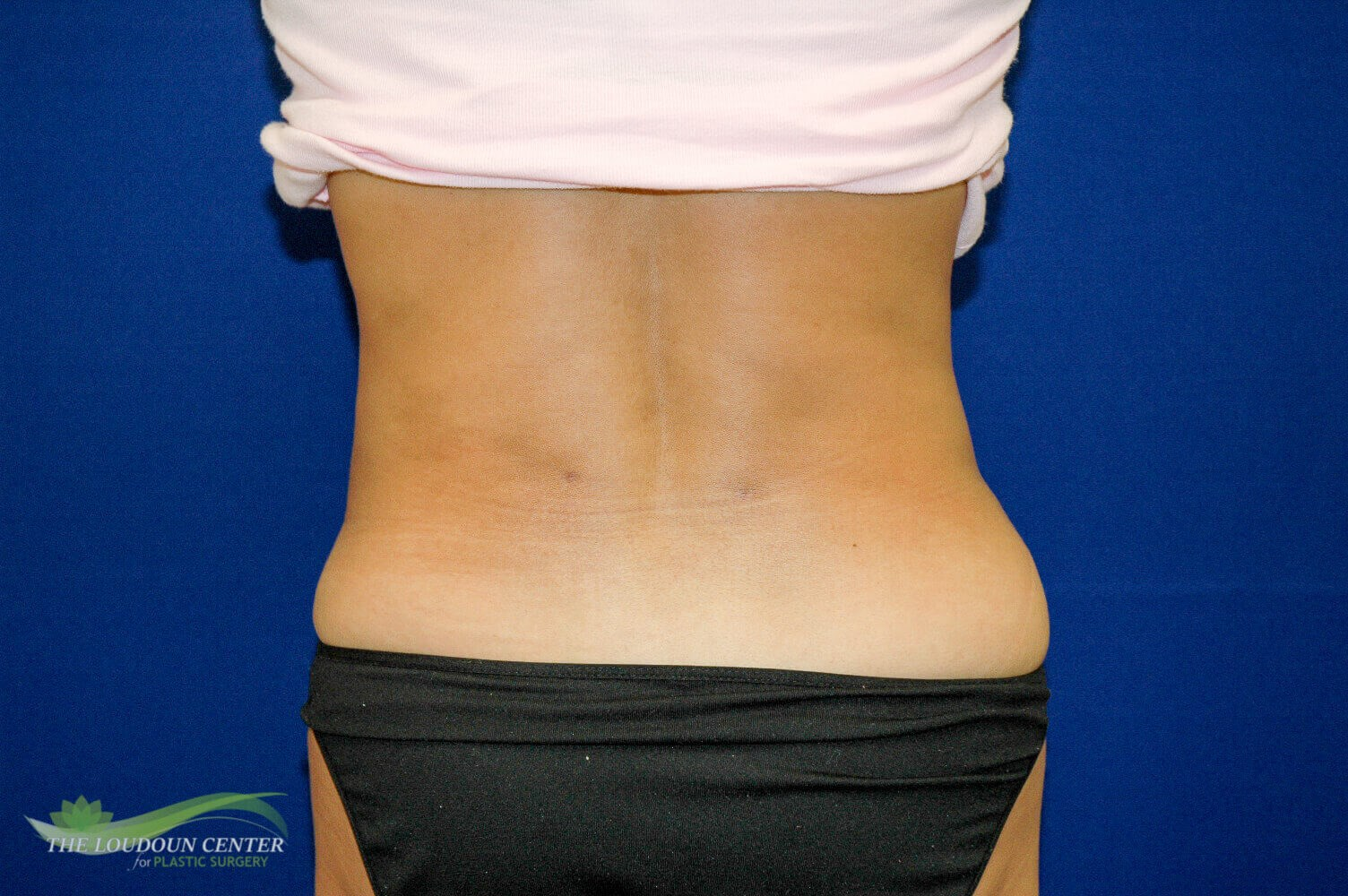 Liposuction Flanks After