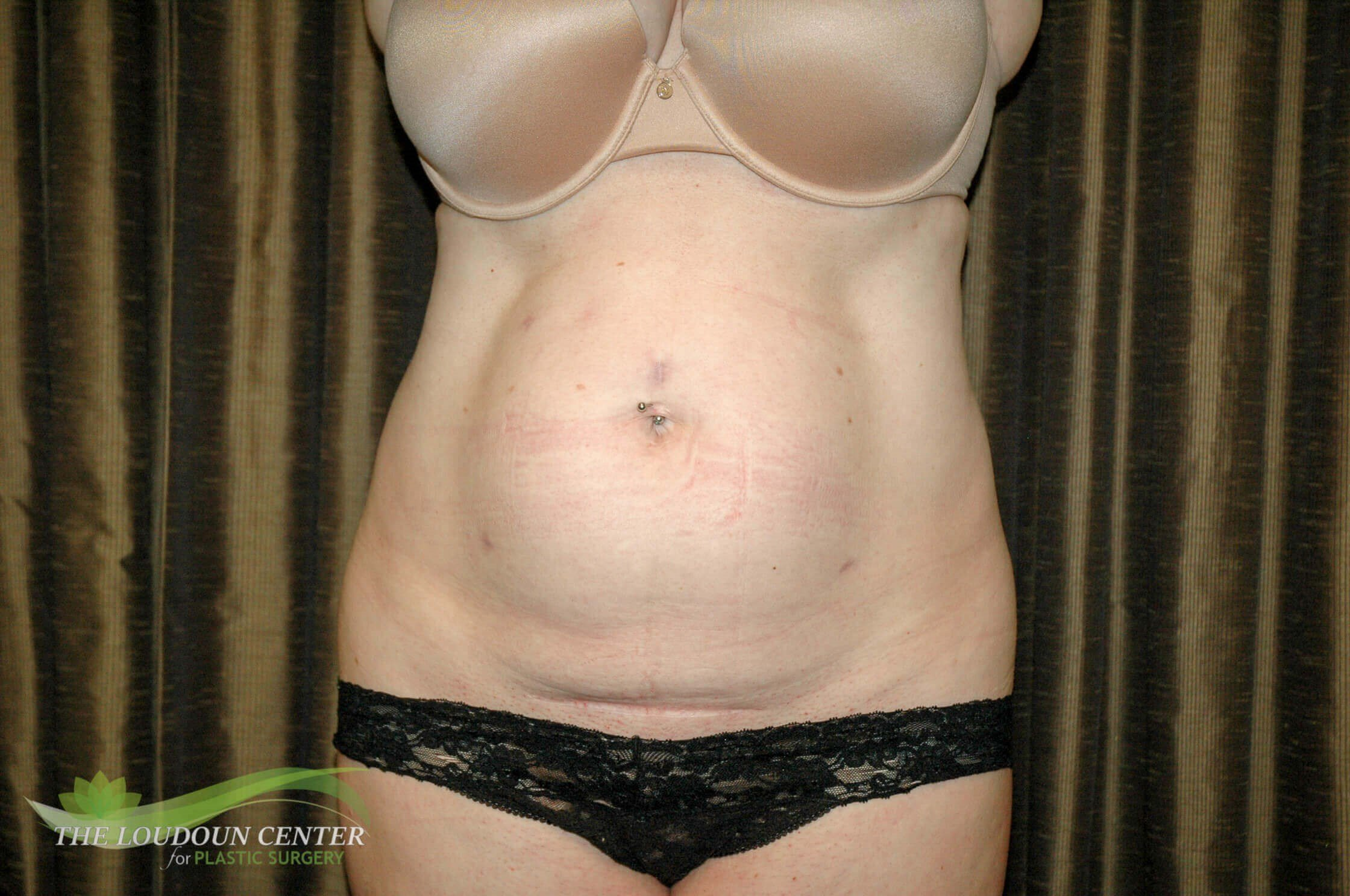 Mini Tummy Tuck Surgery Before