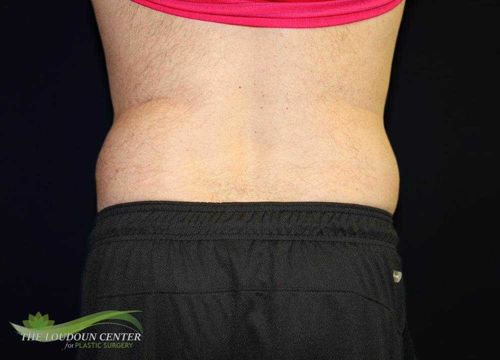 Non Surgical Fat Reduction After
