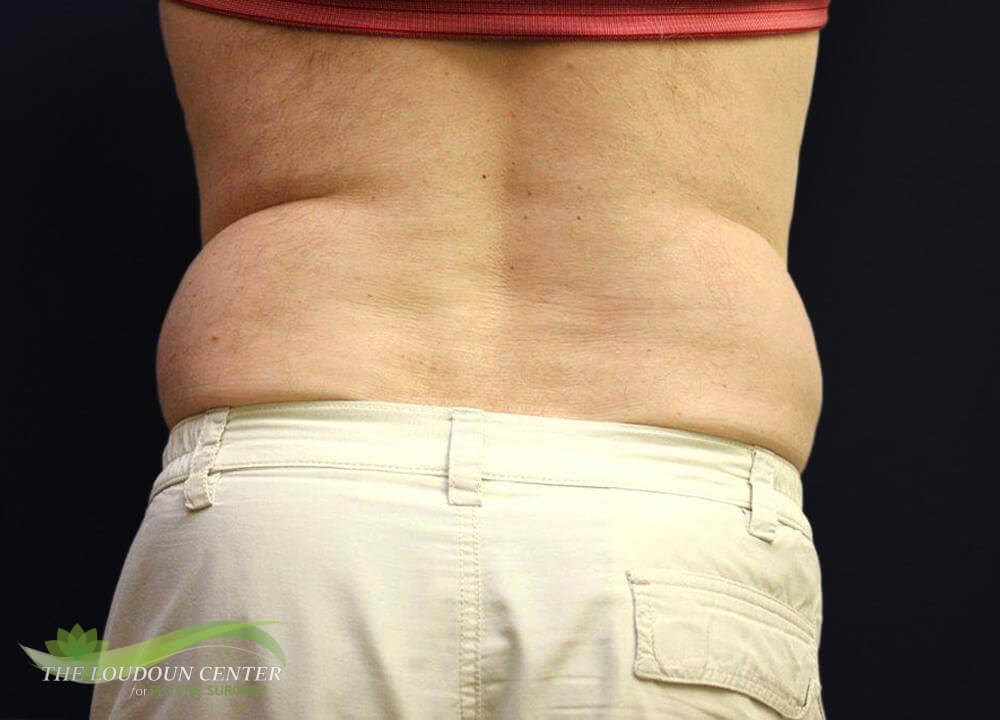 Non Surgical Fat Reduction Before