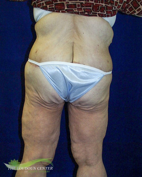 Body Lift Surgery After