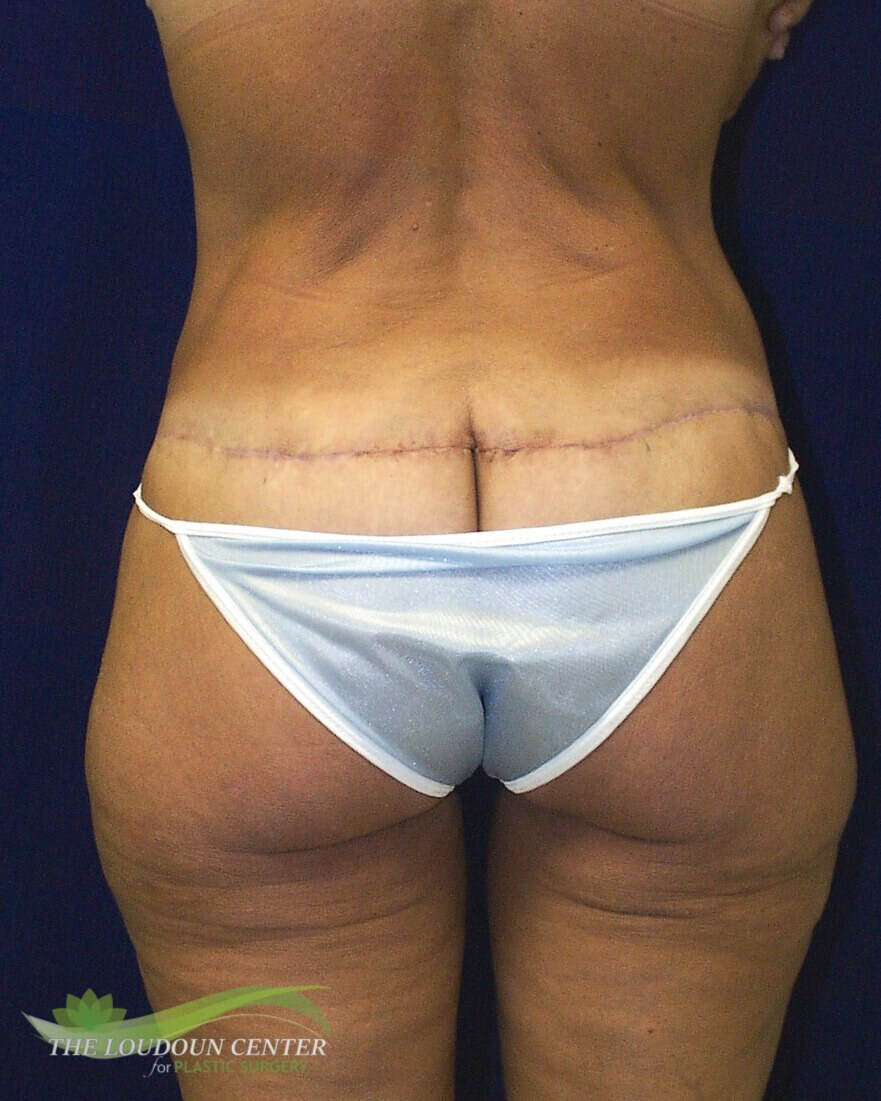 Buttock and Thigh Lift Surgery After