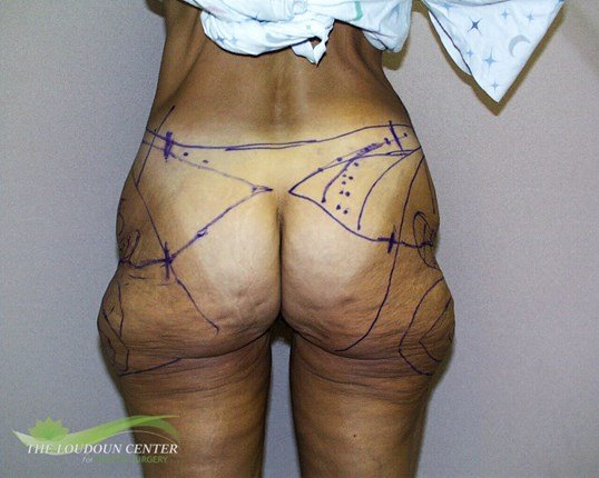 Buttock and Thigh Lift Surgery Before