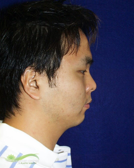 Chin Implant Photos Before