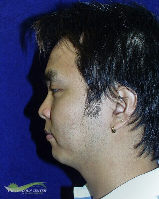 Chin Implant Pictures Before