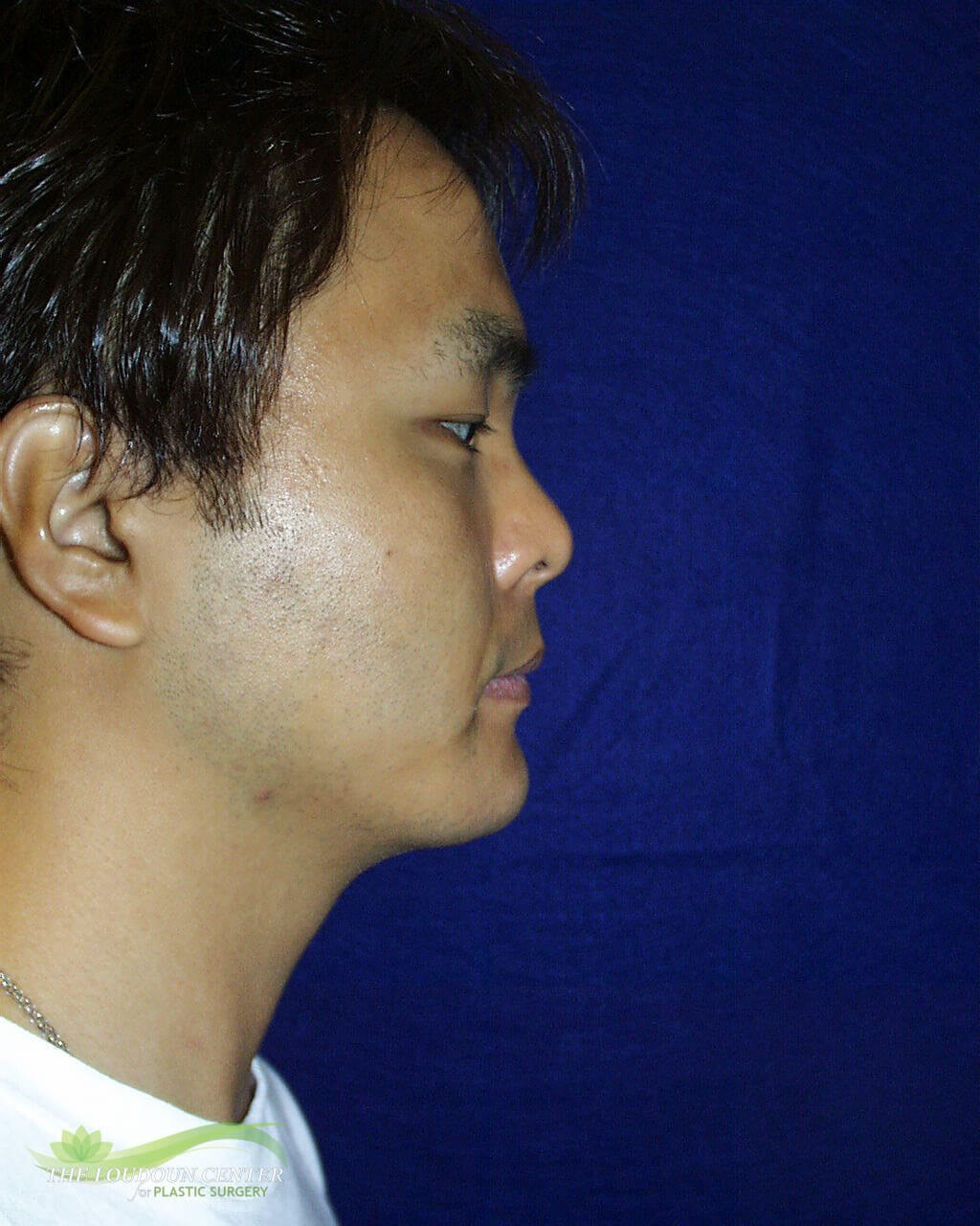 Chin Implant Photos After