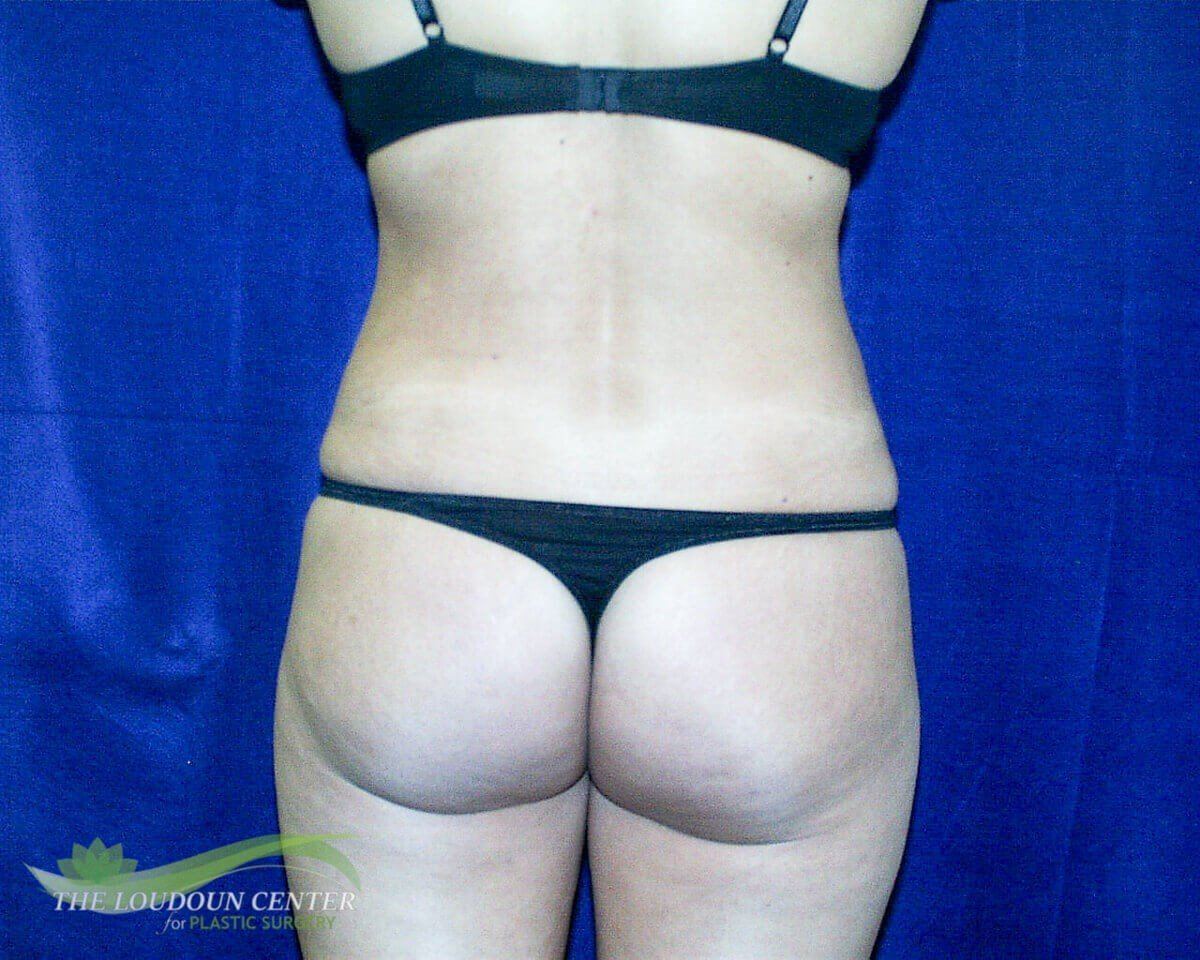 Liposuction Flanks Photos After