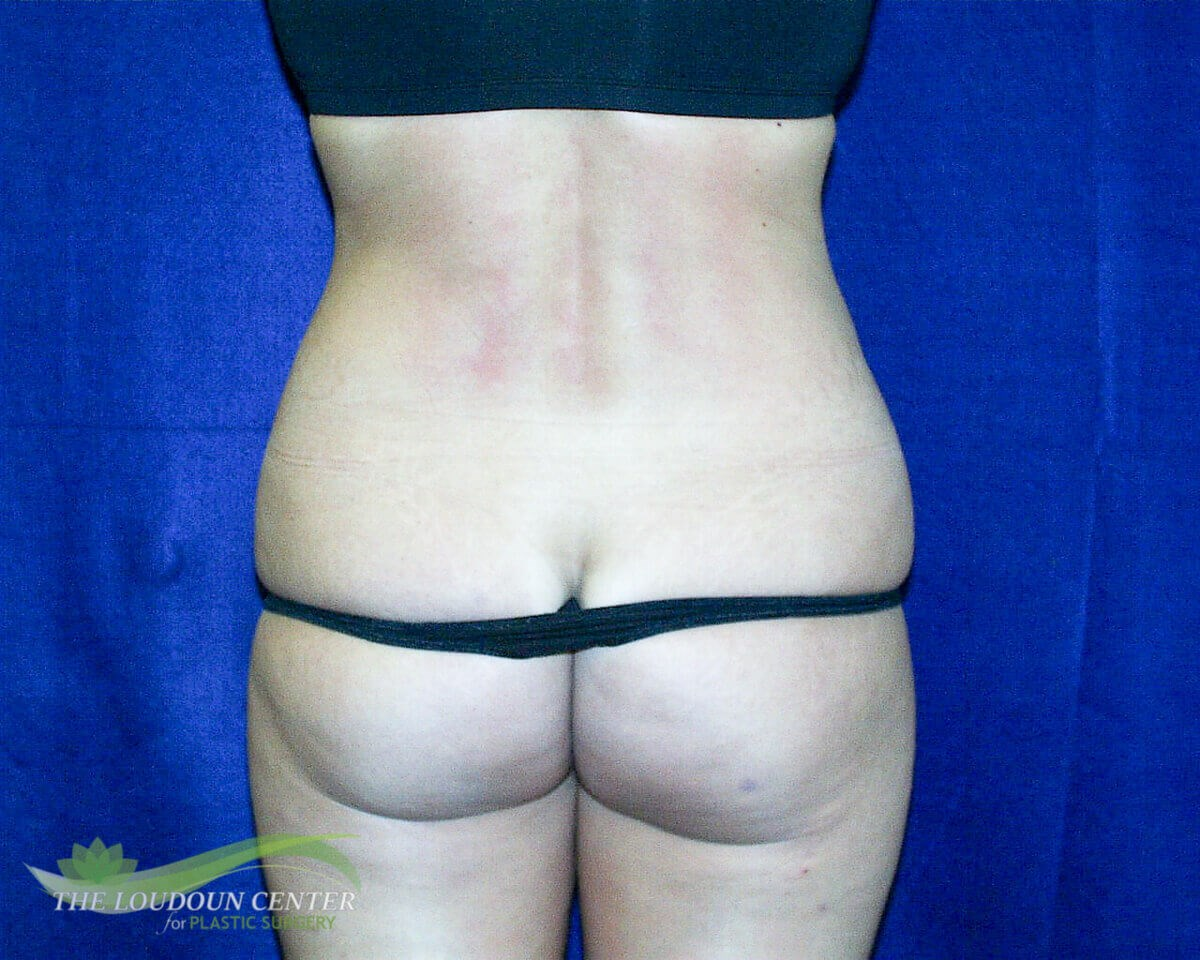Liposuction Flanks Photos Before