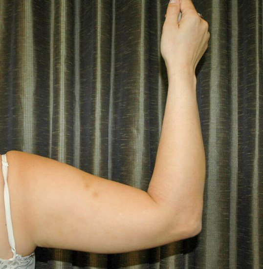 Arm Liposuction Pictures Before