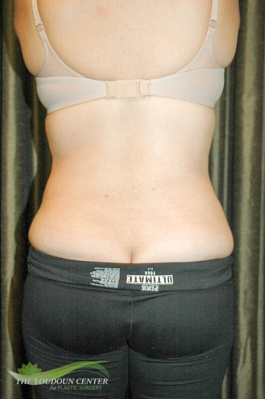 Liposuction Flanks Pictures After