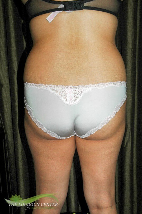 Liposuction Flanks Pictures Before