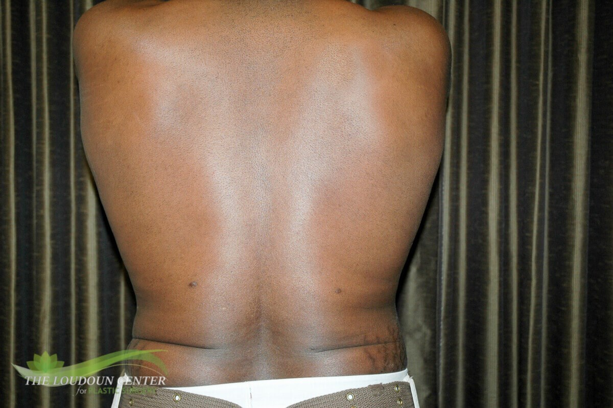 Man Liposuction Flanks Photos After