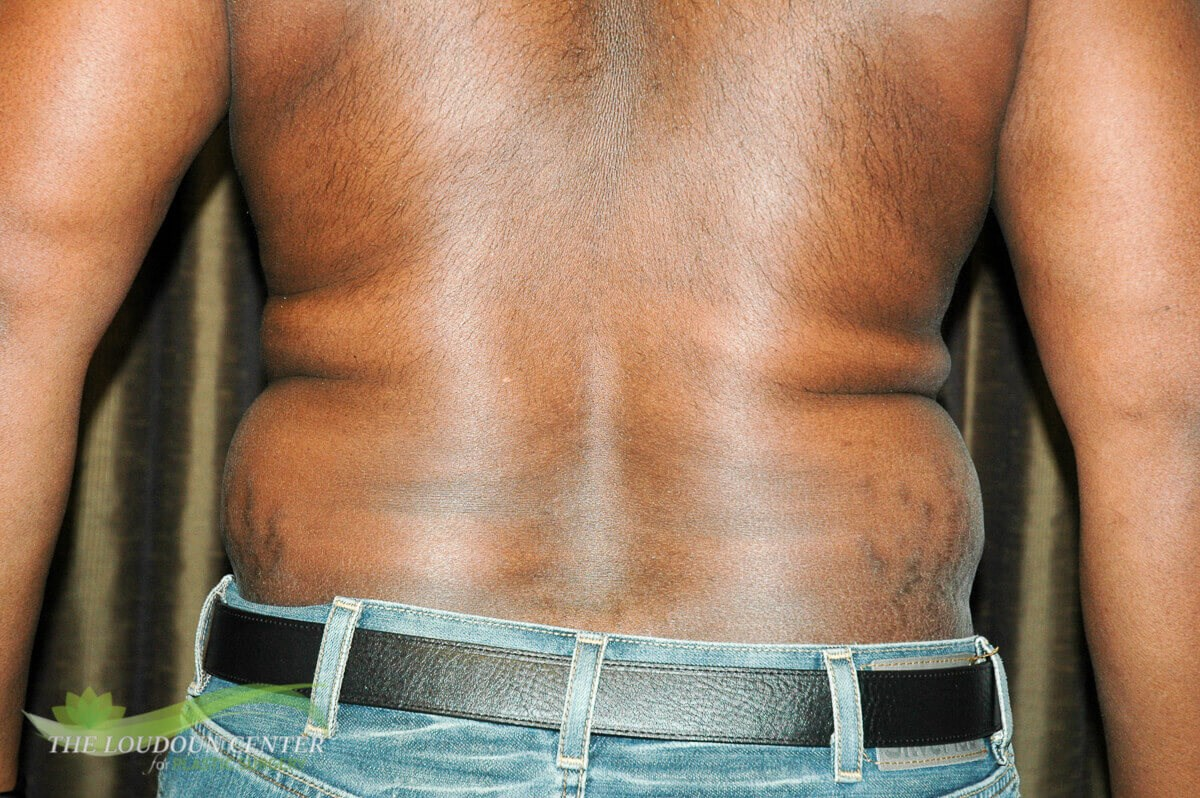 Man Liposuction Flanks Photos Before