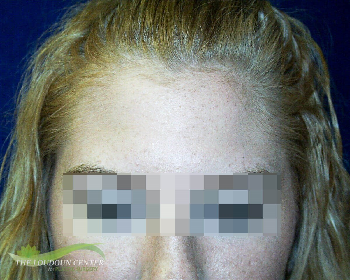 Forehead Lines - Botox After
