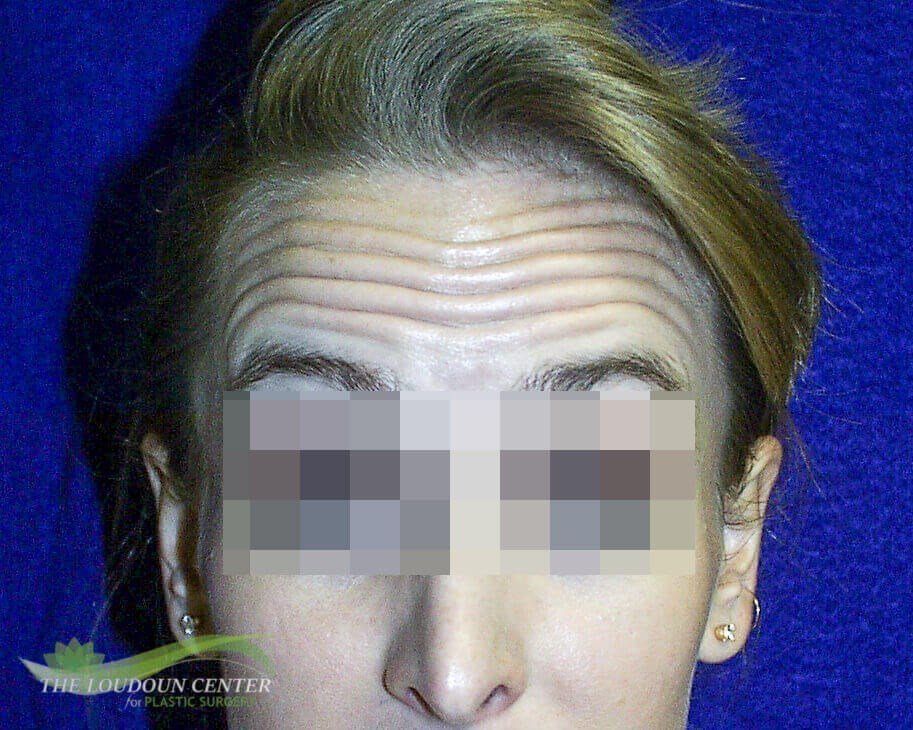 Forehead Lines - Botox Before