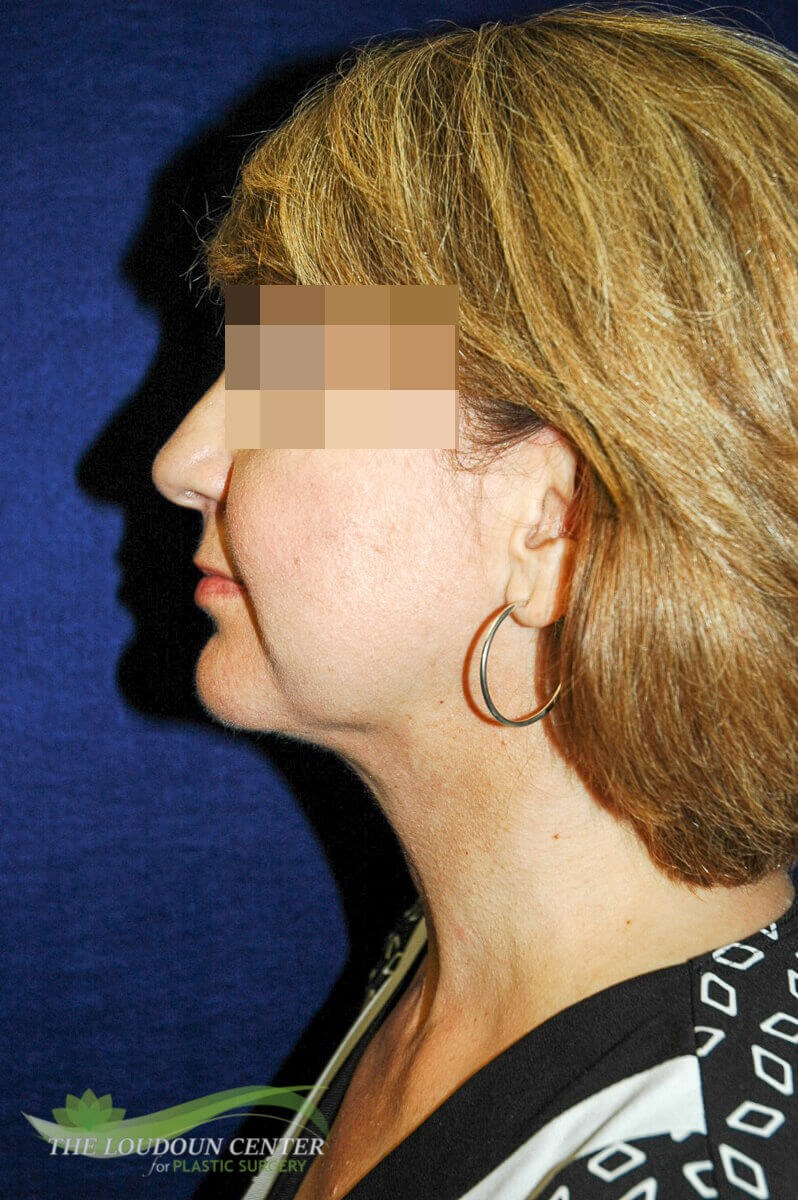 Neck Lift Plastic Surgery After