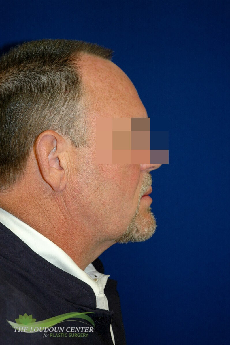 Male Neck Lift Plastic Surgery After
