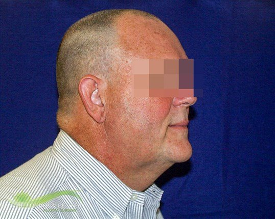 Male Neck Lift Plastic Surgery Before
