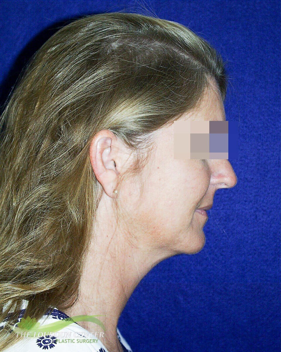 Neck Lift Plastic Surgery Before