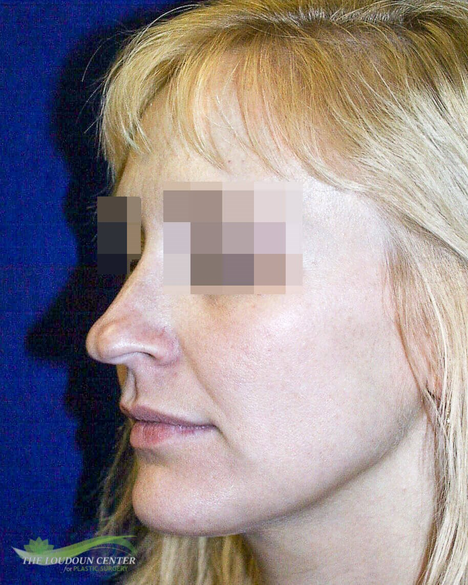 Nasal Tip Rhinoplasty Before