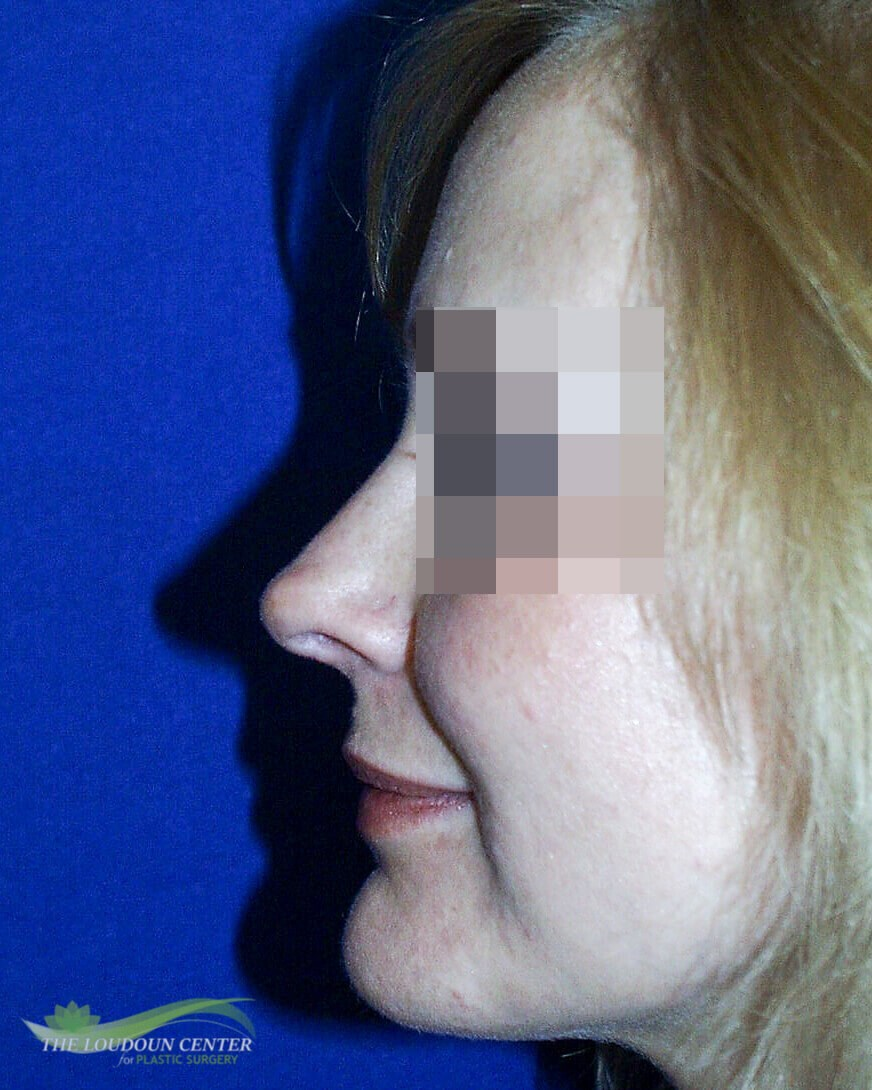 Nasal Tip Rhinoplasty After