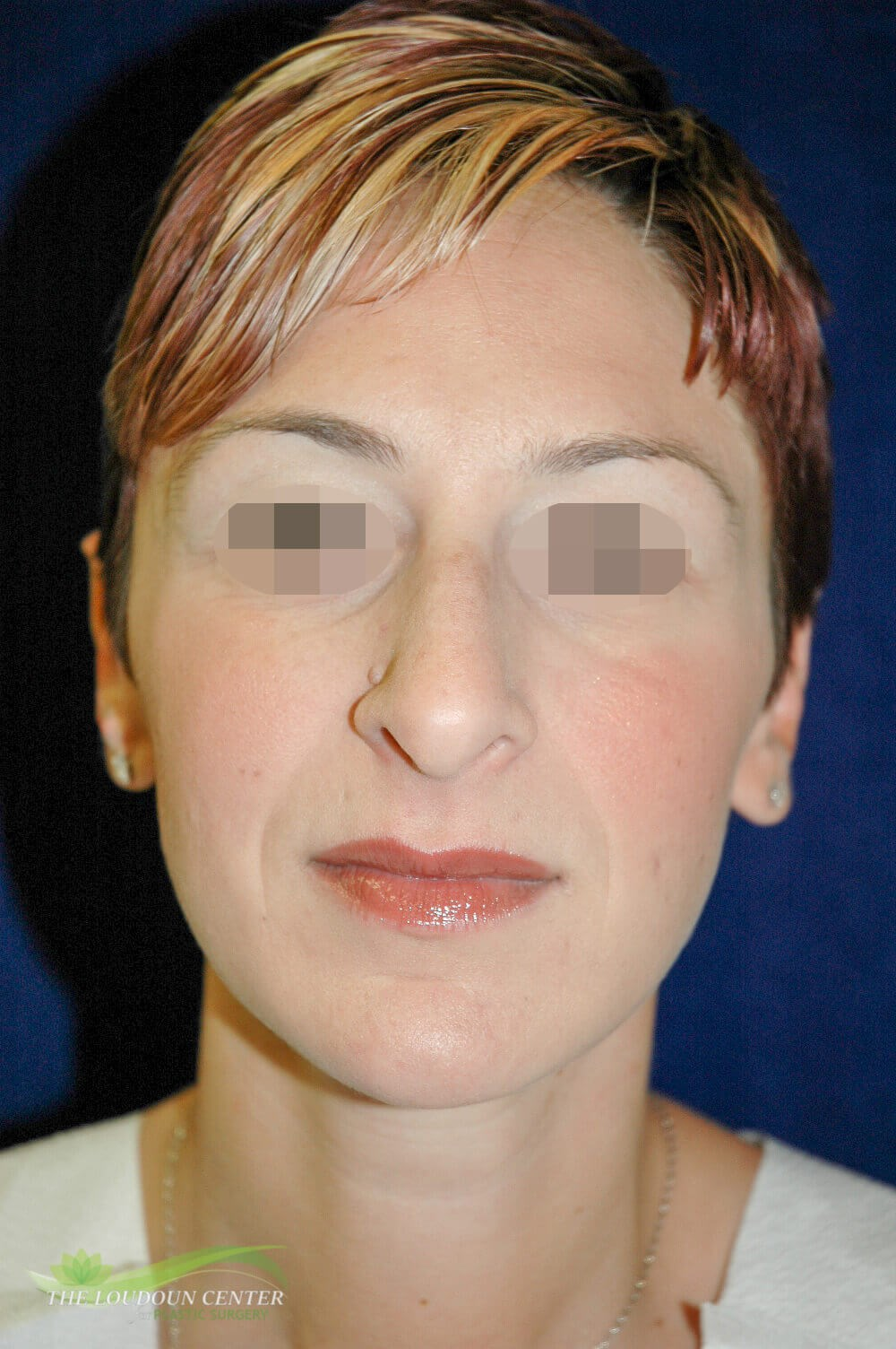 Rhinoplasty or Nose Surgery Before