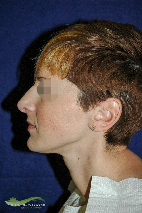 Rhinoplasty or Nose Surgery After