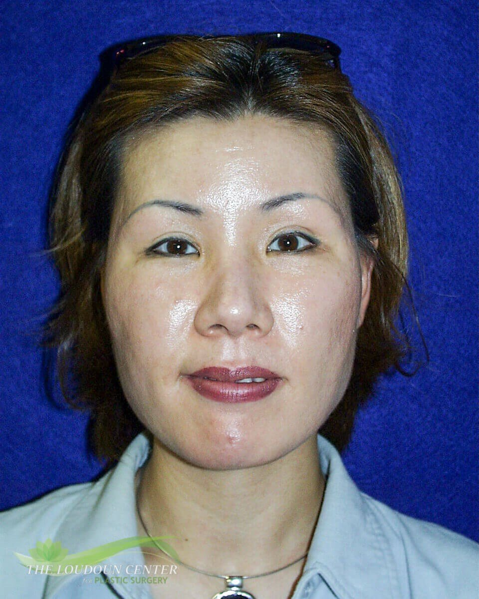 Facial Liposuction Before