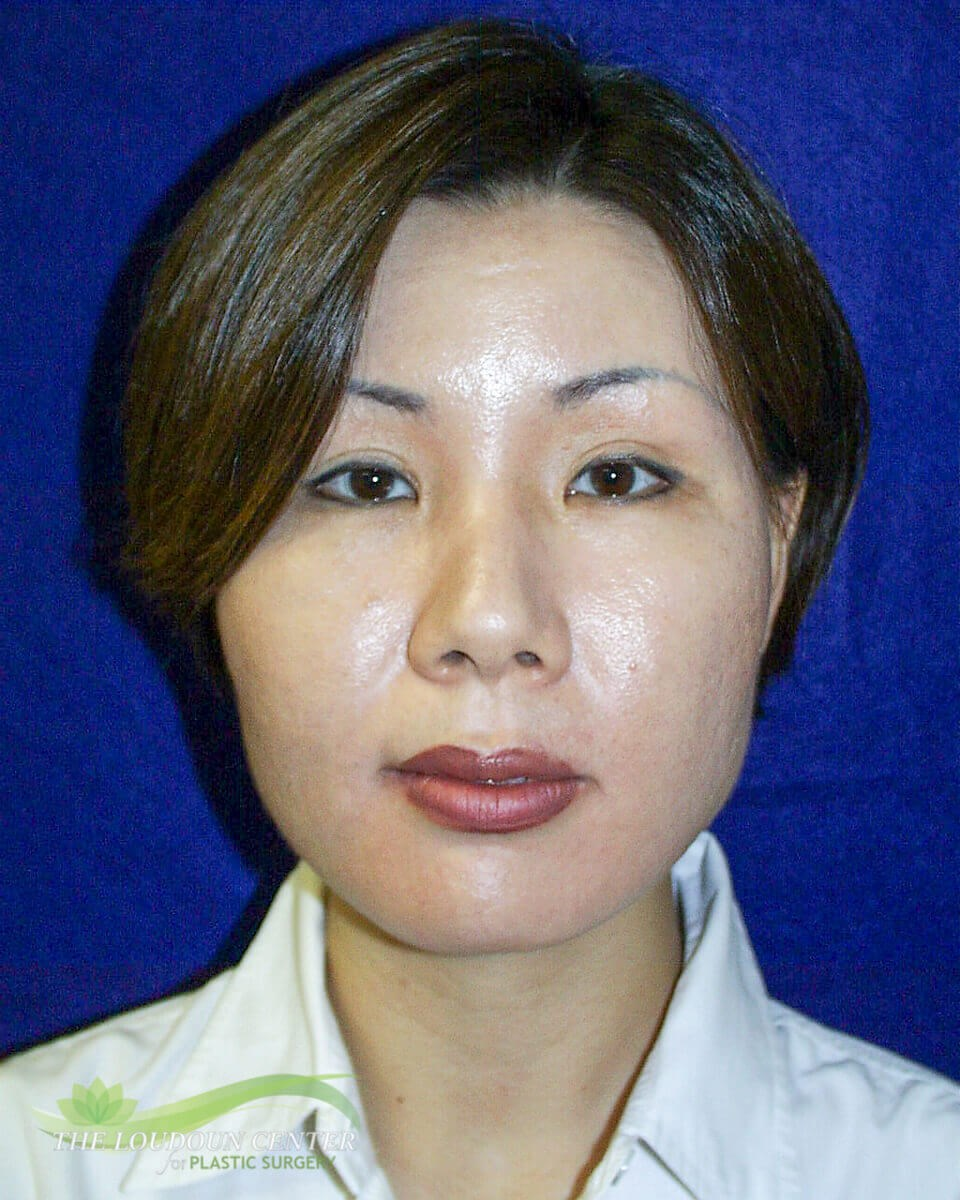 Facial Liposuction After