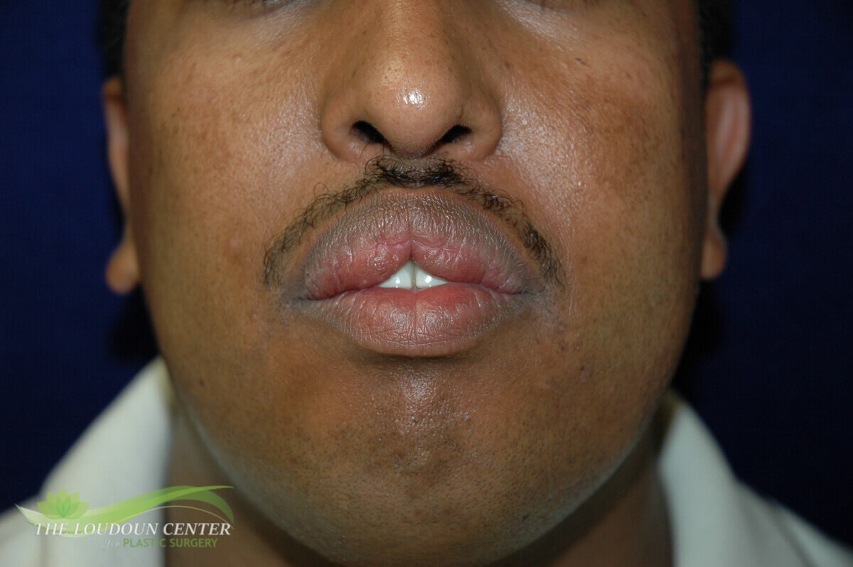 Lip Reduction Surgery Before
