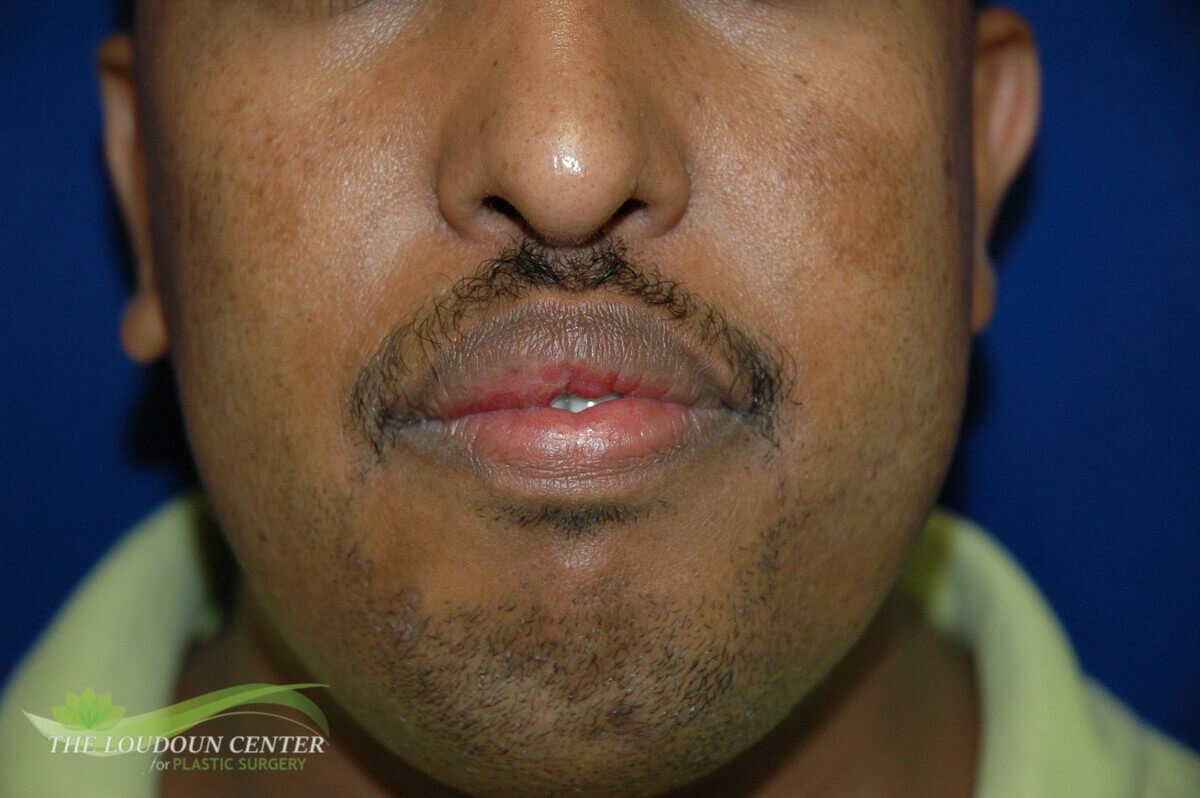 Lip Reduction Surgery After