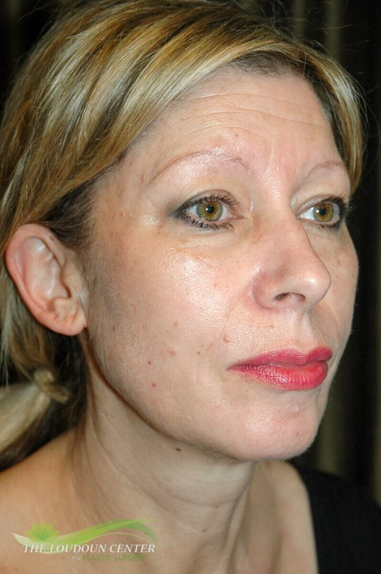 Fat injections to face Before