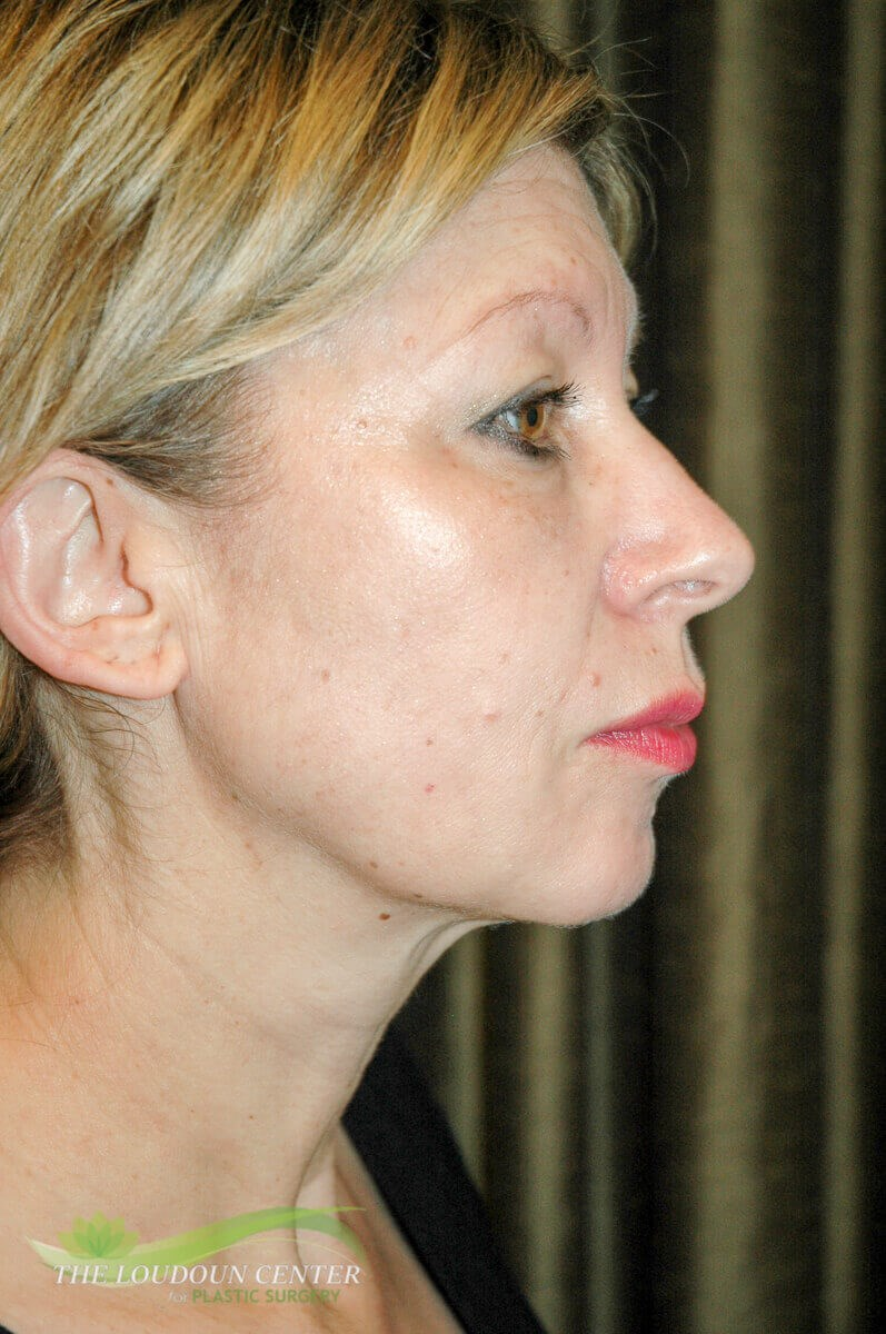 Facial Augmentation with fat Before