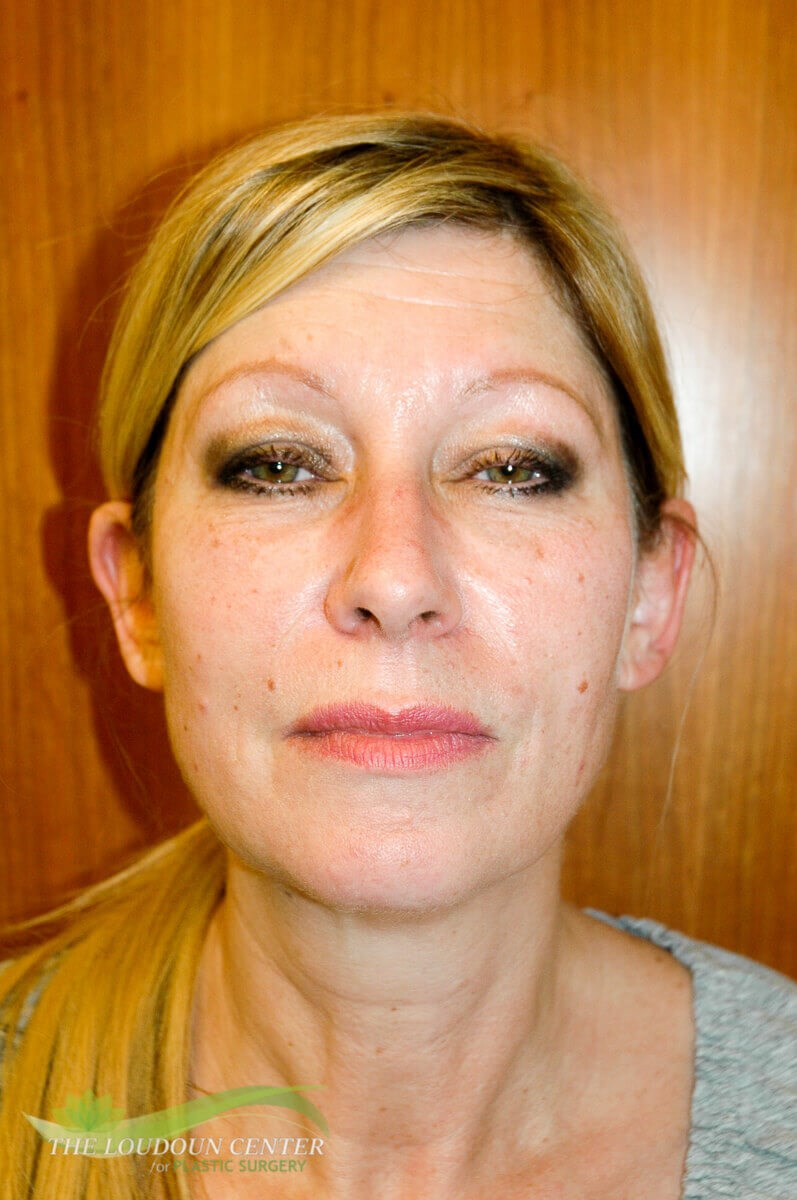 Facial Fat Injections After