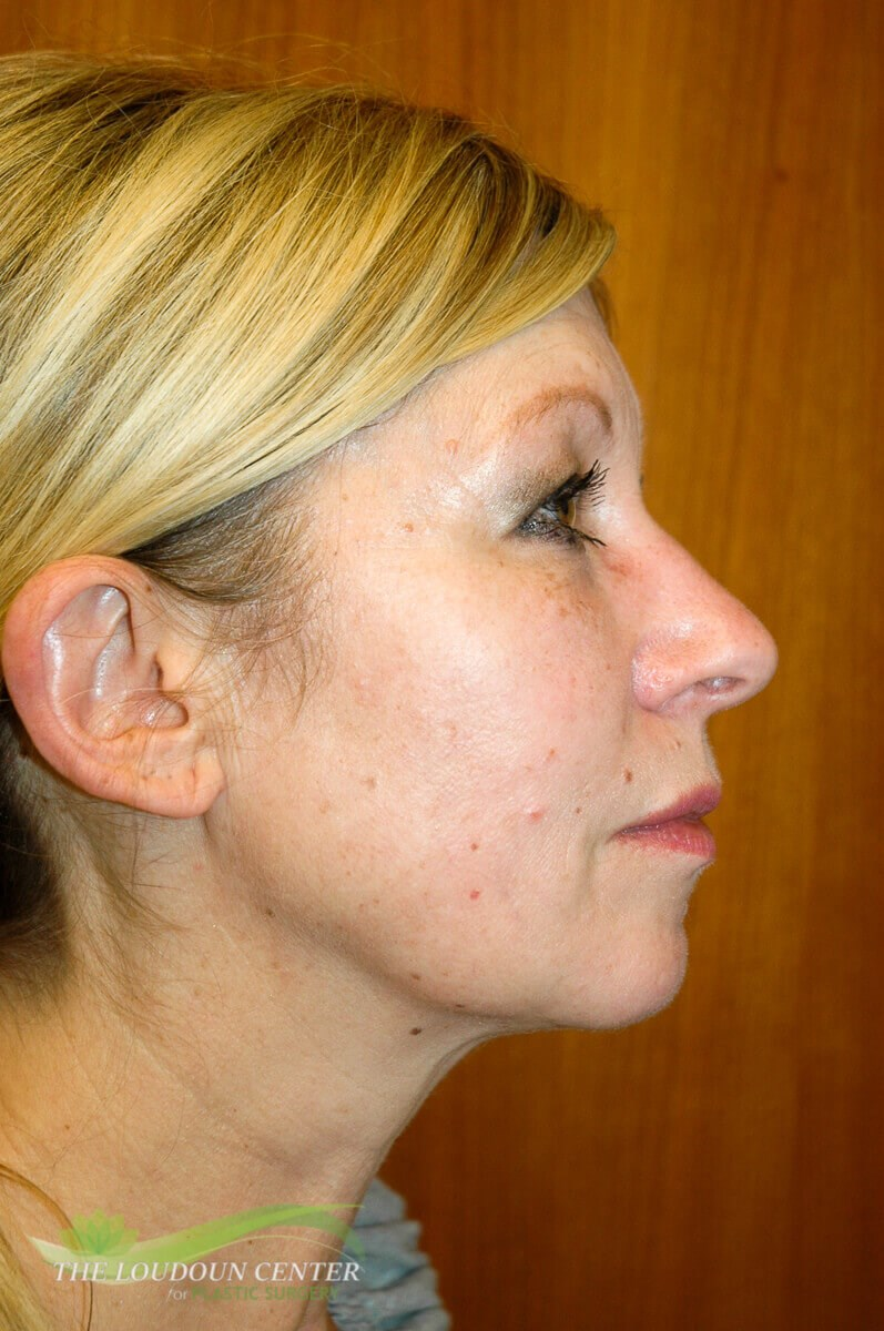 Facial Augmentation with fat After
