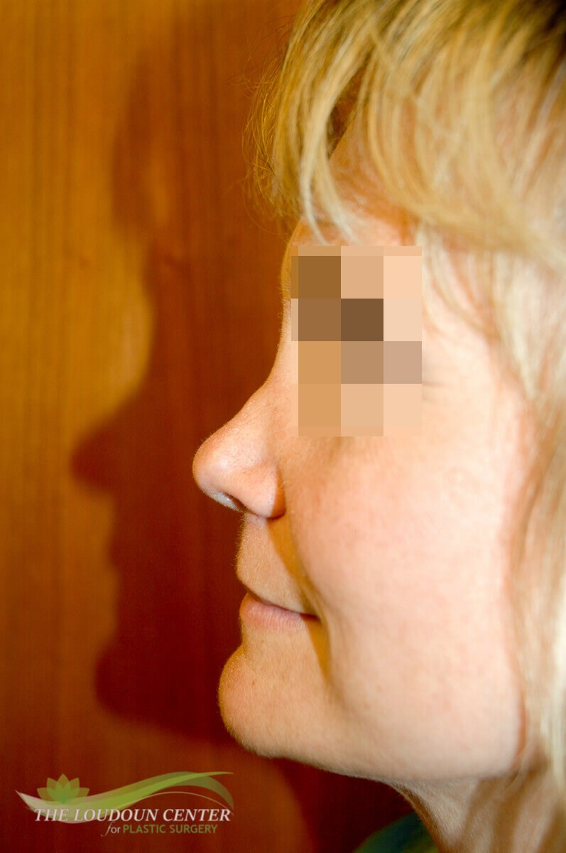 Nasal Correction with filler Before