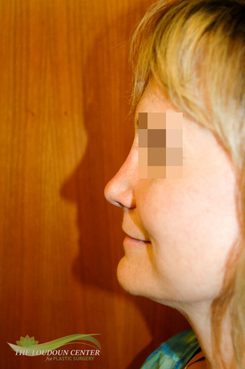 Nasal Correction with filler After