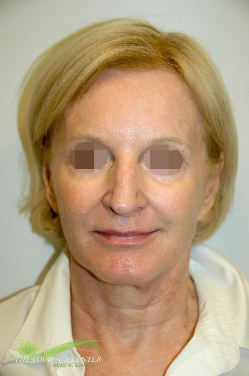 Facial Volume Restoration After