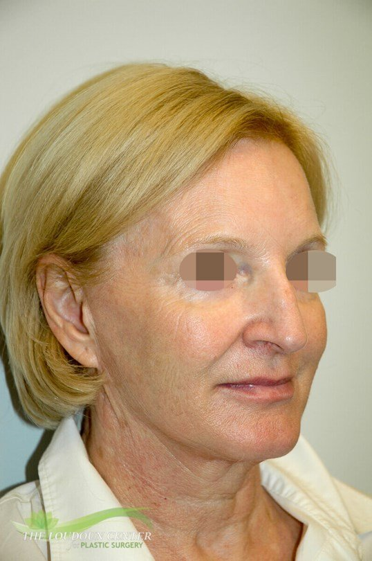 Facial Fillers Photos After