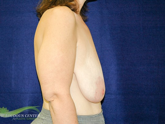 Breast Lift - Profile Before
