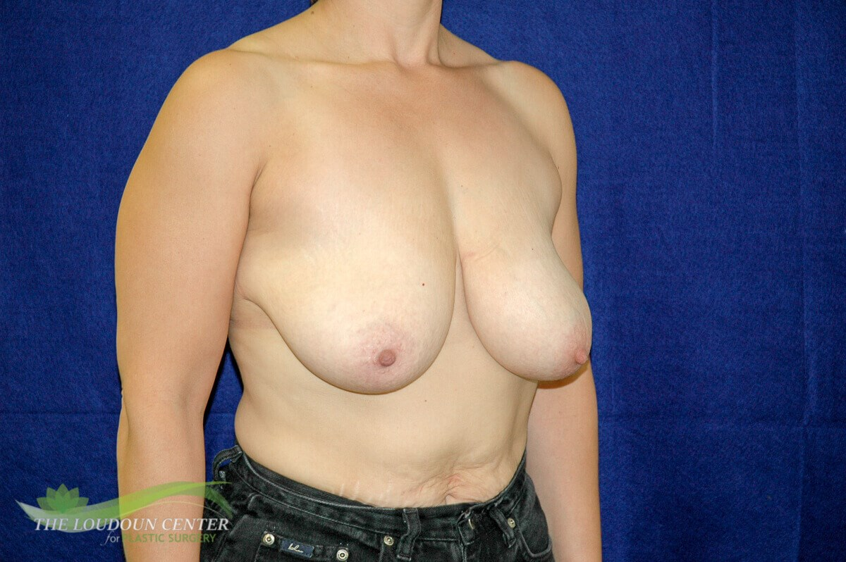 Breast Lift - Oblique Before