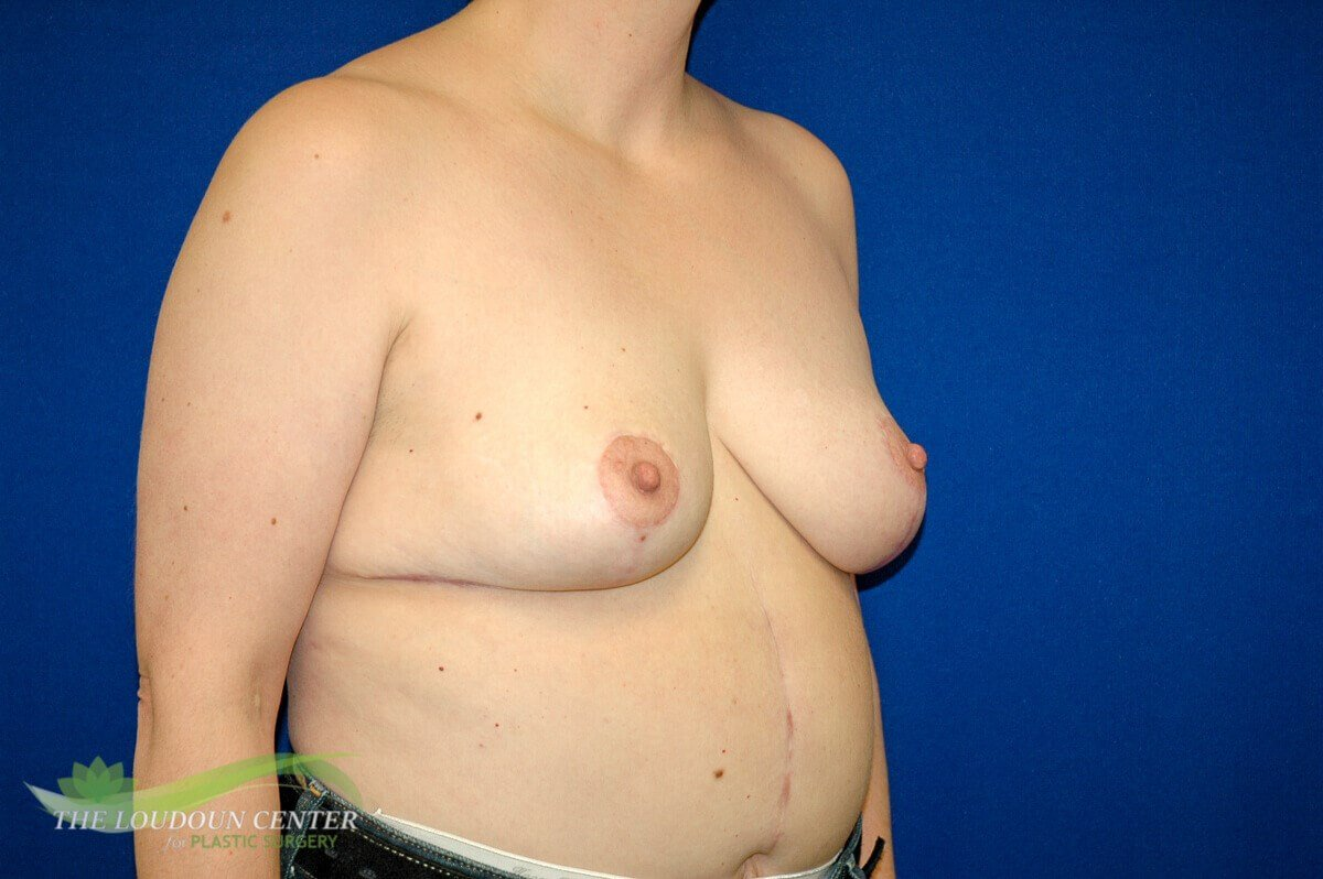 Breast Lift - Oblique After