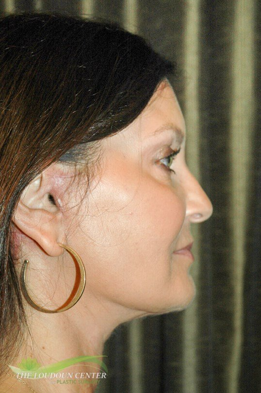 Face Lift - Profile After