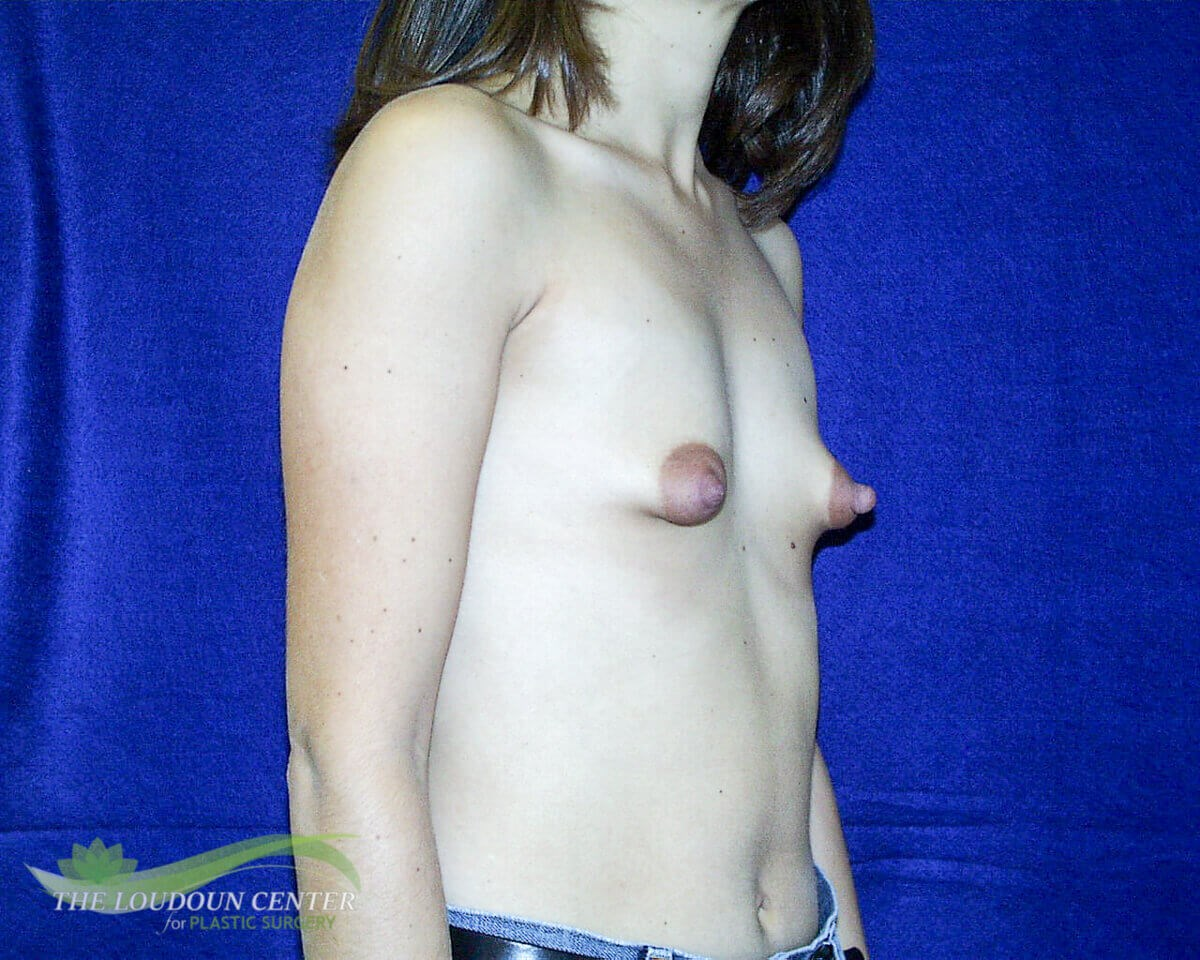 Constricted Breasts & Implants Before