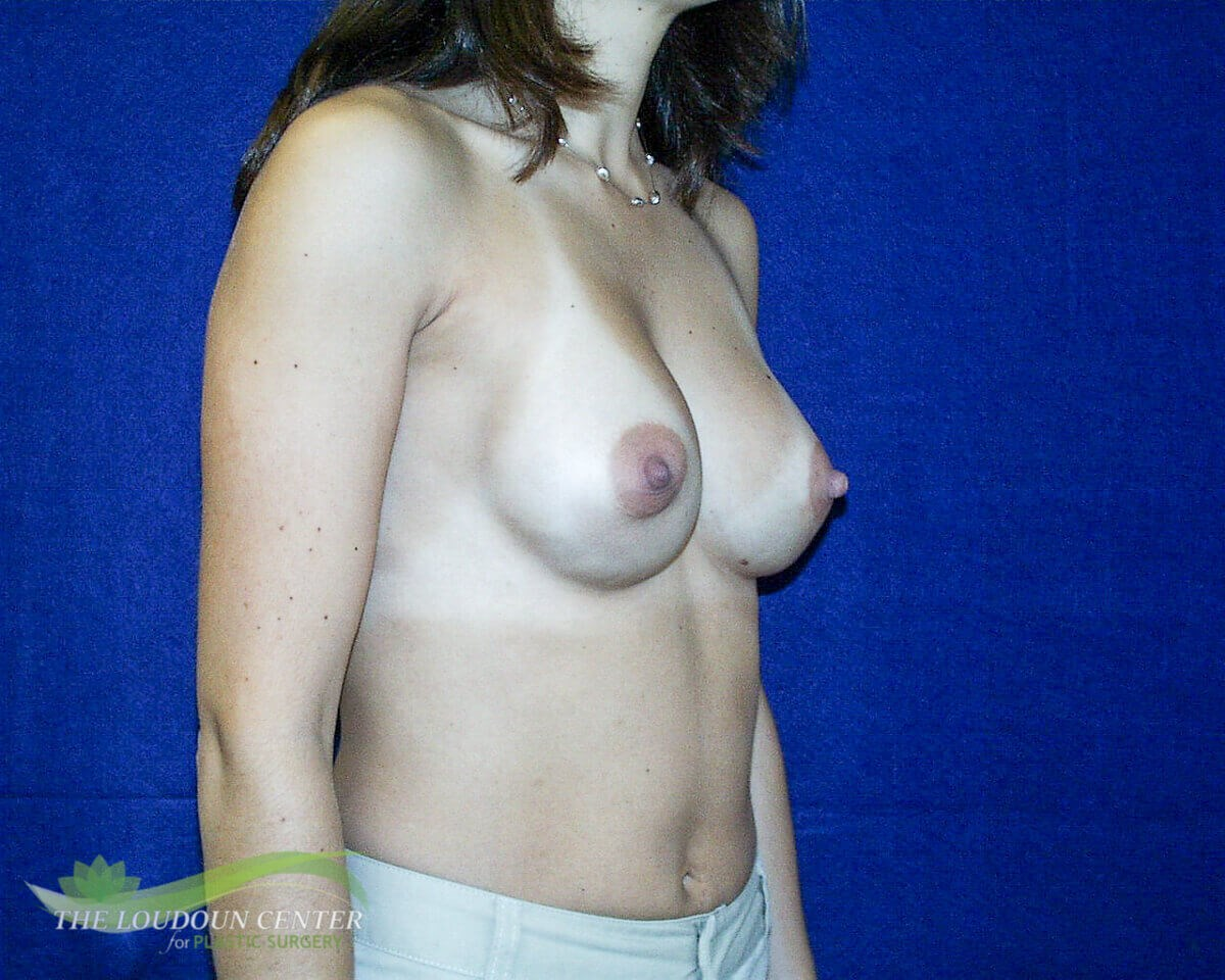 Constricted Breasts & Implants After