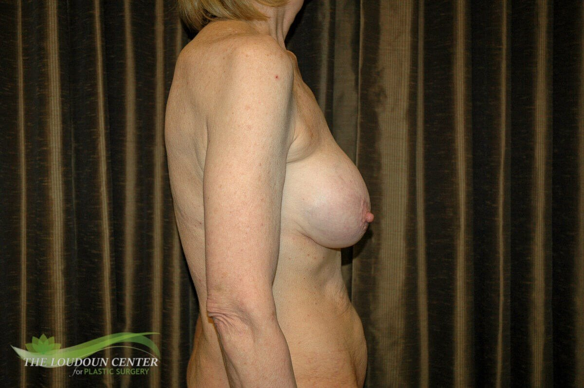 Revision Breast Surgery Before
