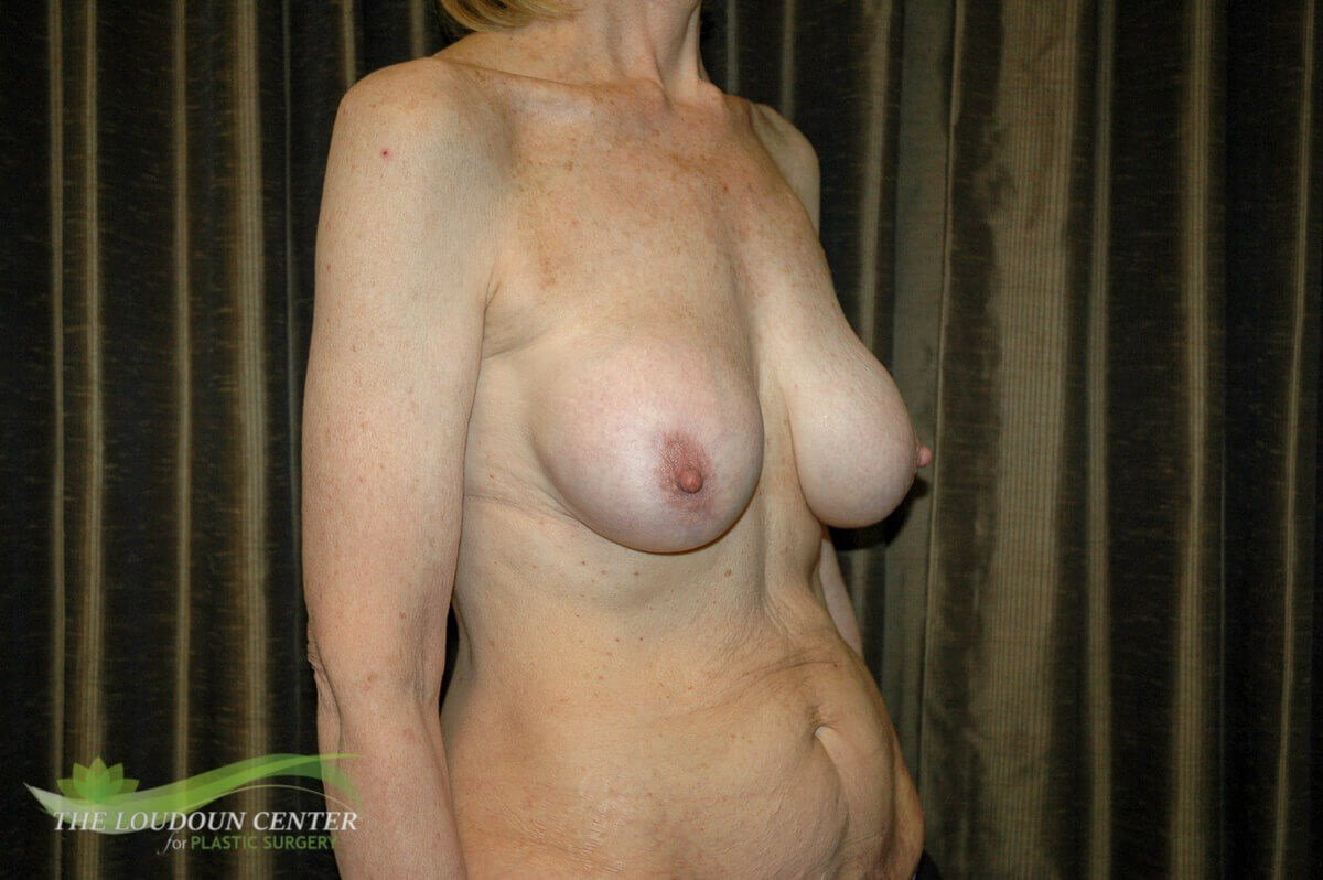 Breast Implant Reposition Before