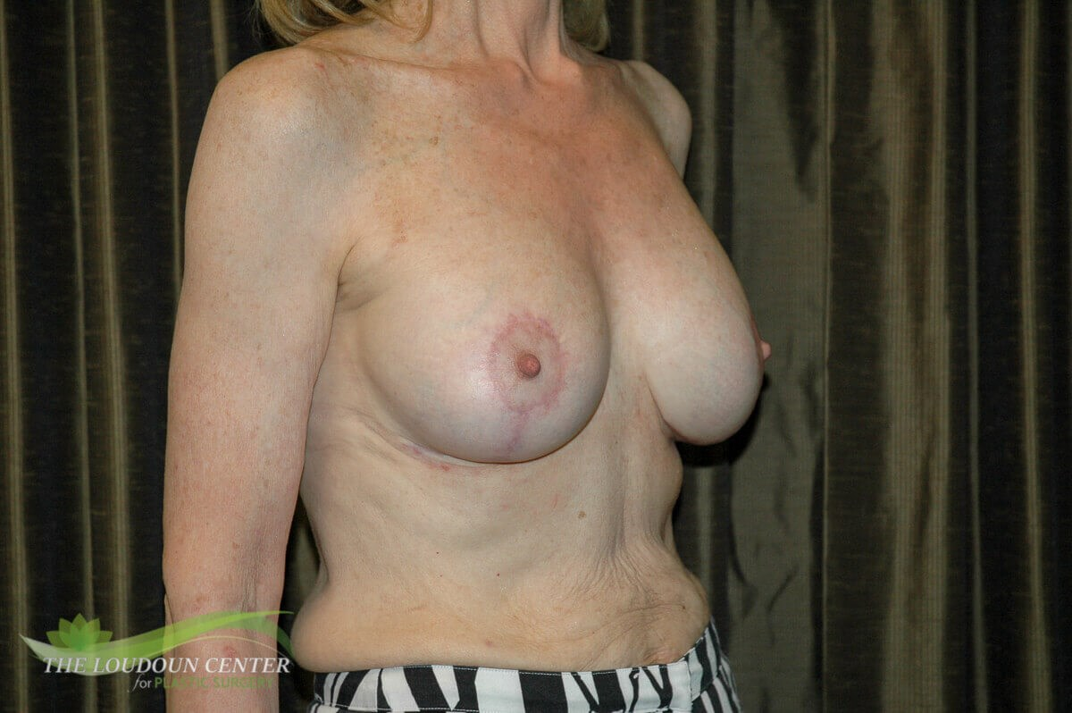 Breast Implant Reposition After