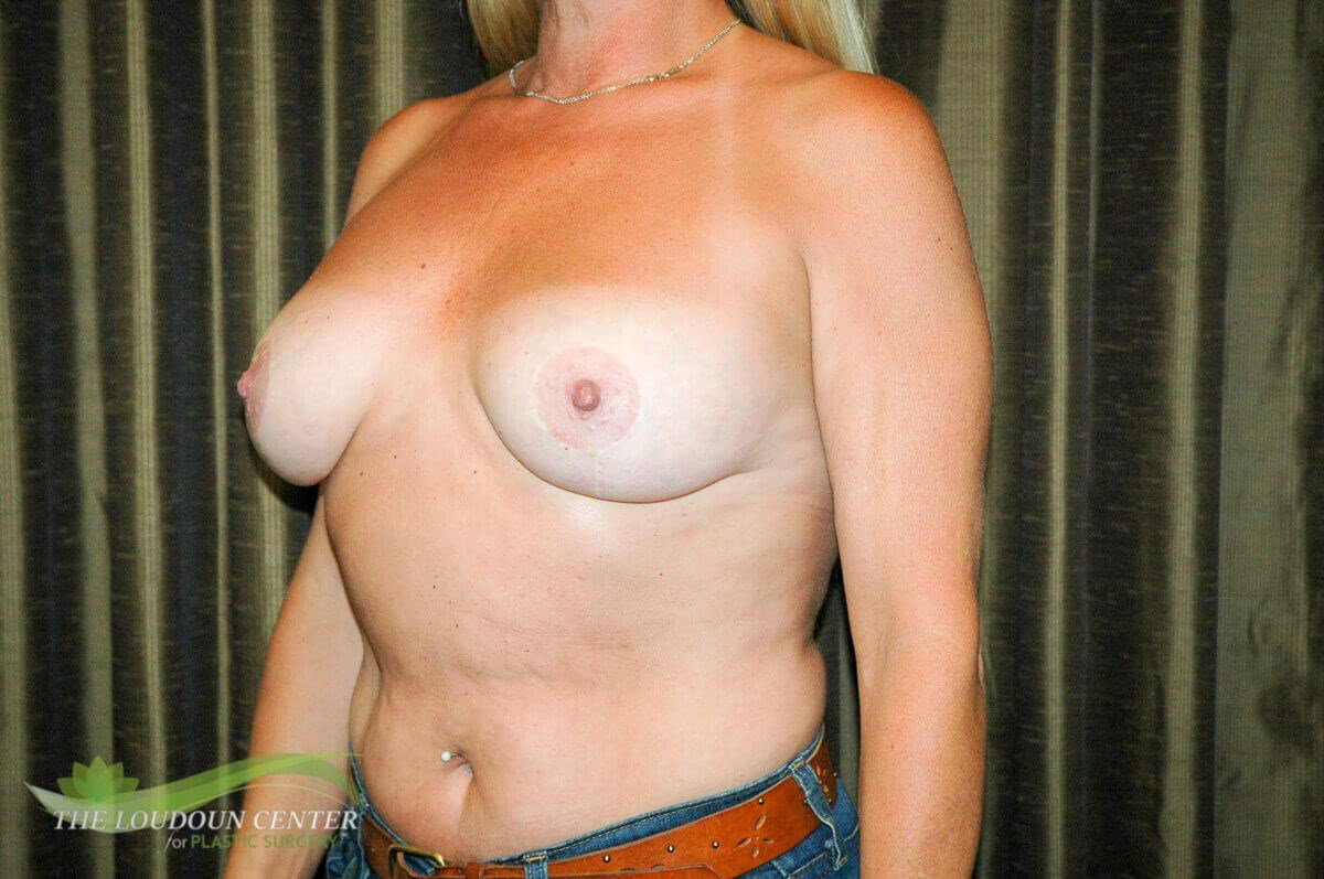 Breast Implant Exchange & Lift After